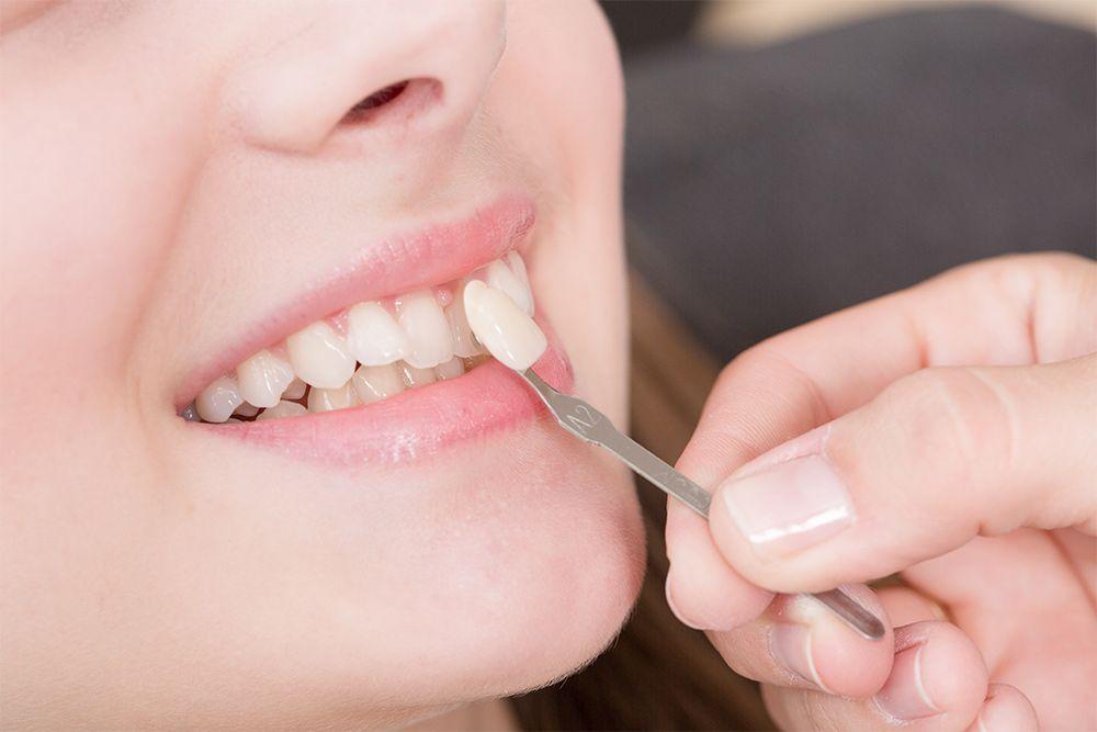 Dentist placing veneer in patients mouth