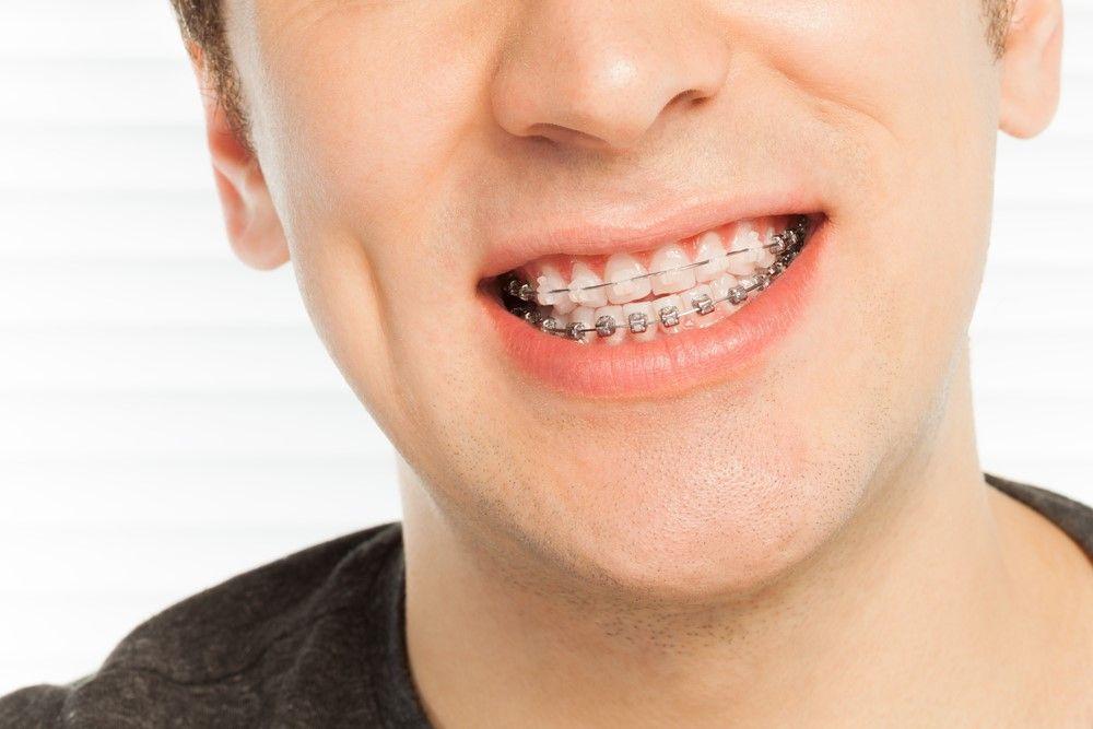 rockford orthodontic patient